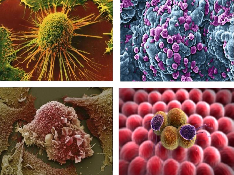 celule_canceroase